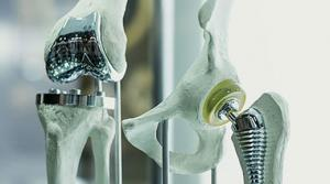 Artificial Joint Implants